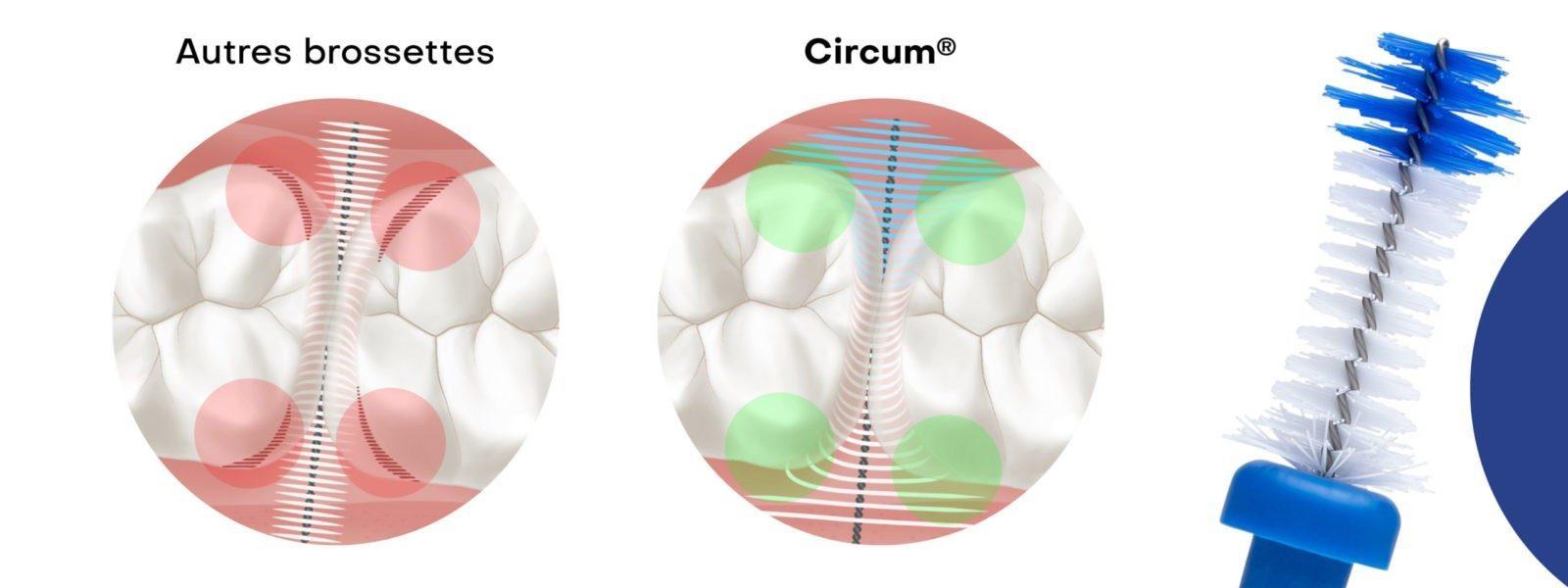 Avantages des brossettes interdentaires Circum par rapport aux autres disponibles sur le marché de l'hygiène bucco-dentaire.